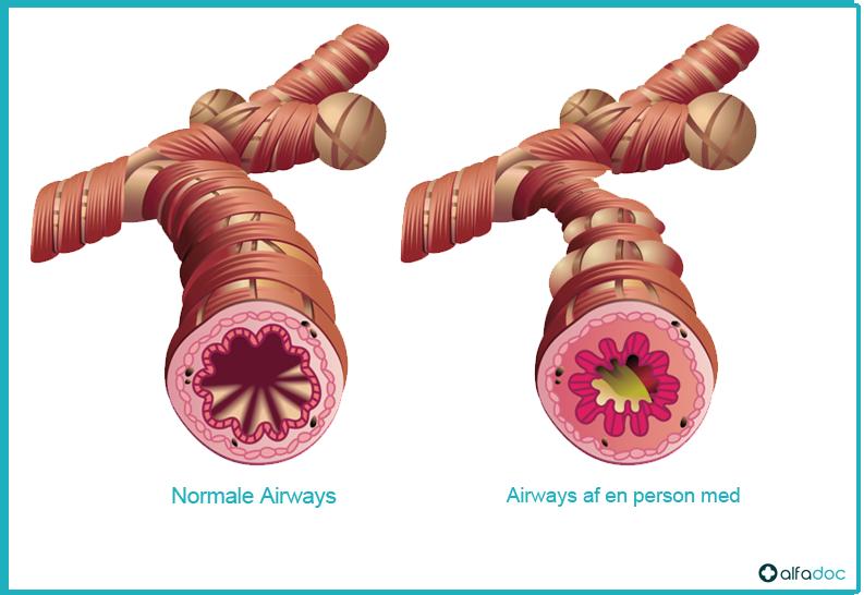 Airways af en person med astma